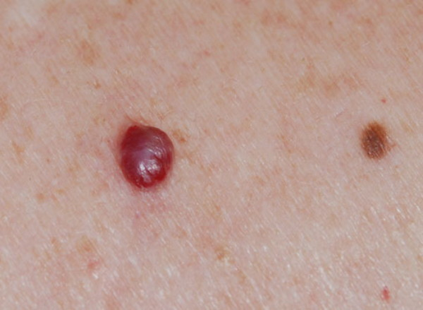 cancerul de piele se poate vindeca