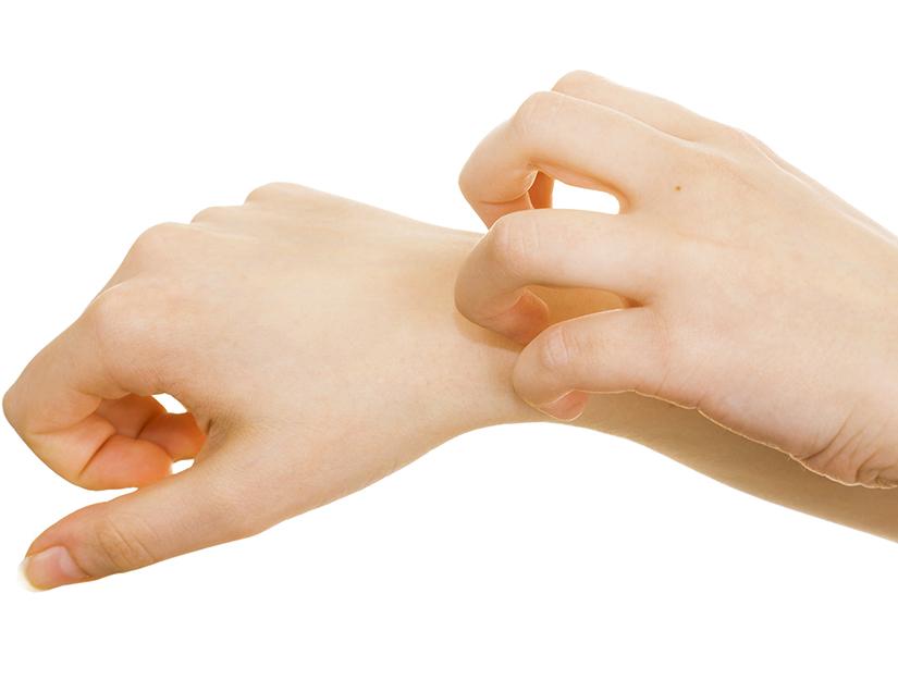 dermatita alergica