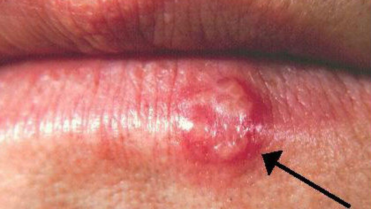 ovarian cancer epithelial origin wart on foot infected