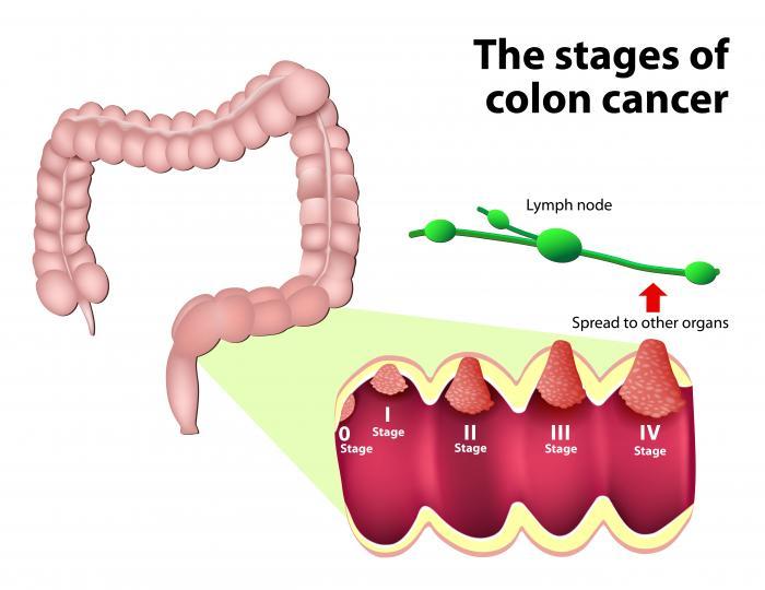 rectal cancer or bowel