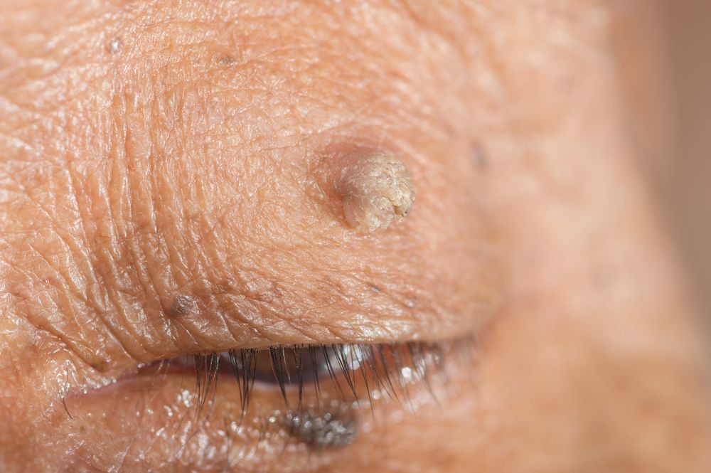 wart on the eyelid breast cancer and papilloma