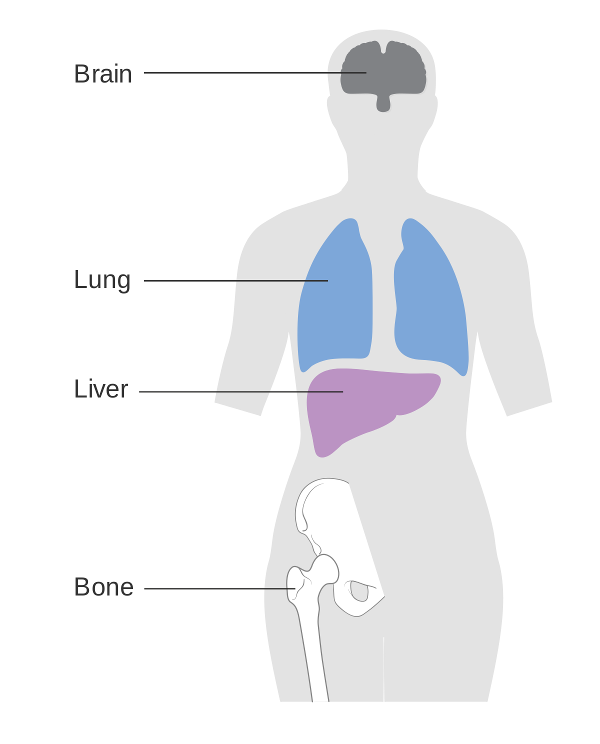 metastatic cancer last stage symptoms