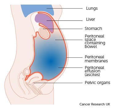 ovarian cancer abdominal fluid cancer de pancreas y trombosis