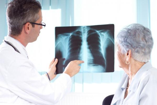 cancer pulmonar scuamos tratament papilloma virus ai maschi