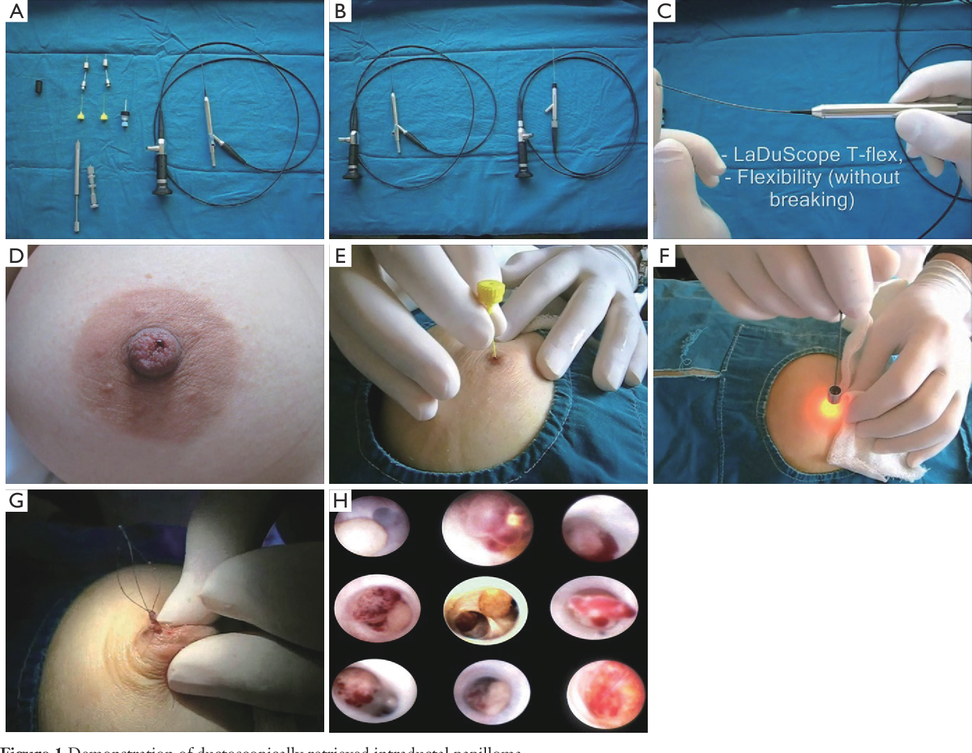 treatment of papilloma helminth infection classification