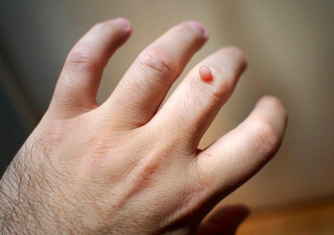papilloma virus alle mani detoxifiere cu sucuri verzi