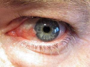 hpv eye test hpv high risk not 16/18