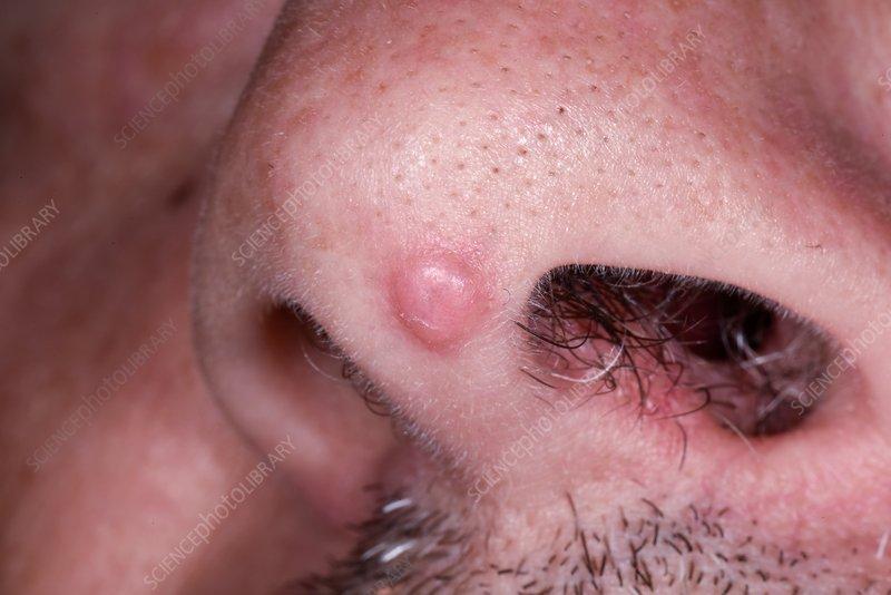 papilloma cancerous