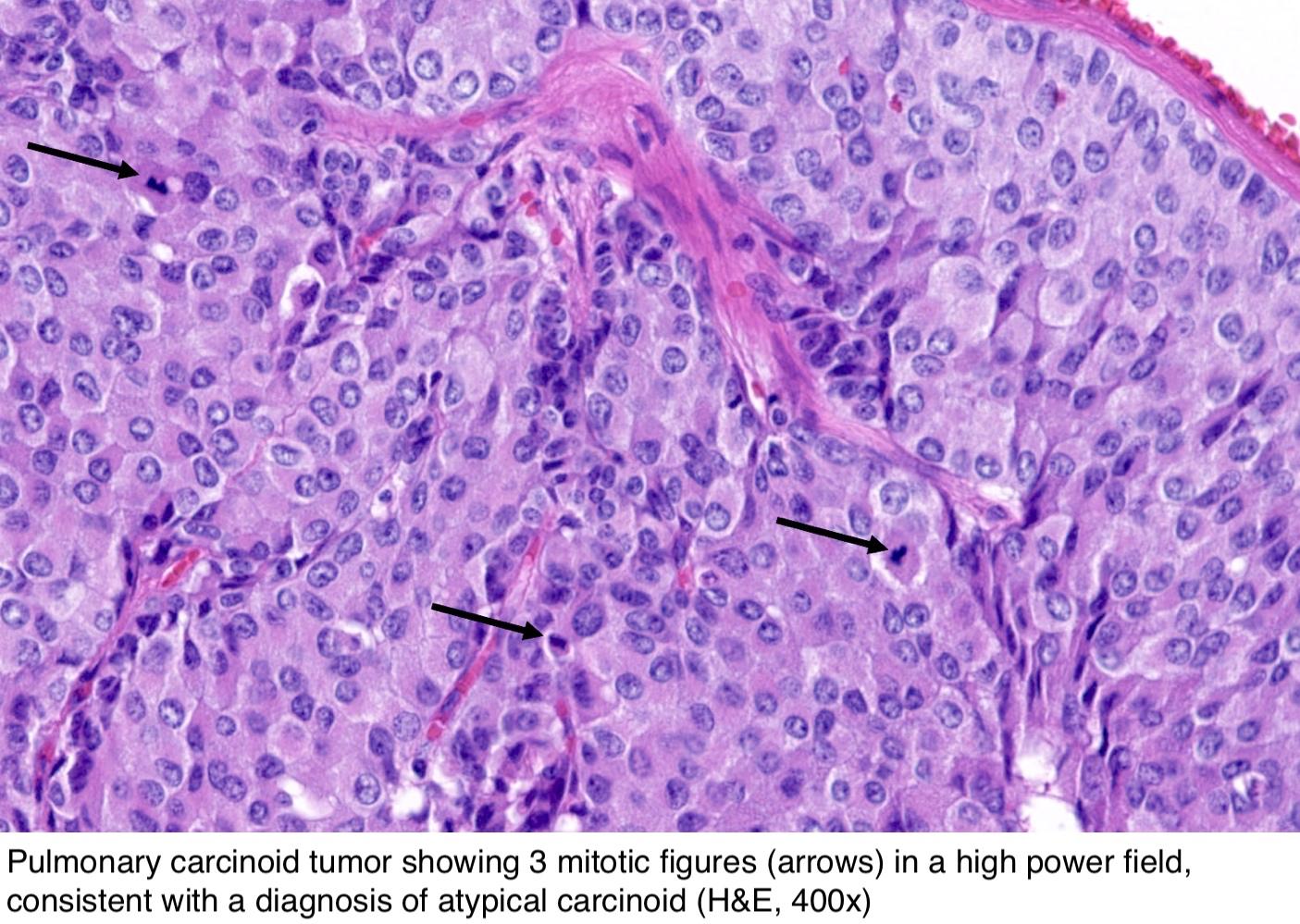 neuroendocrine cancer biopsy