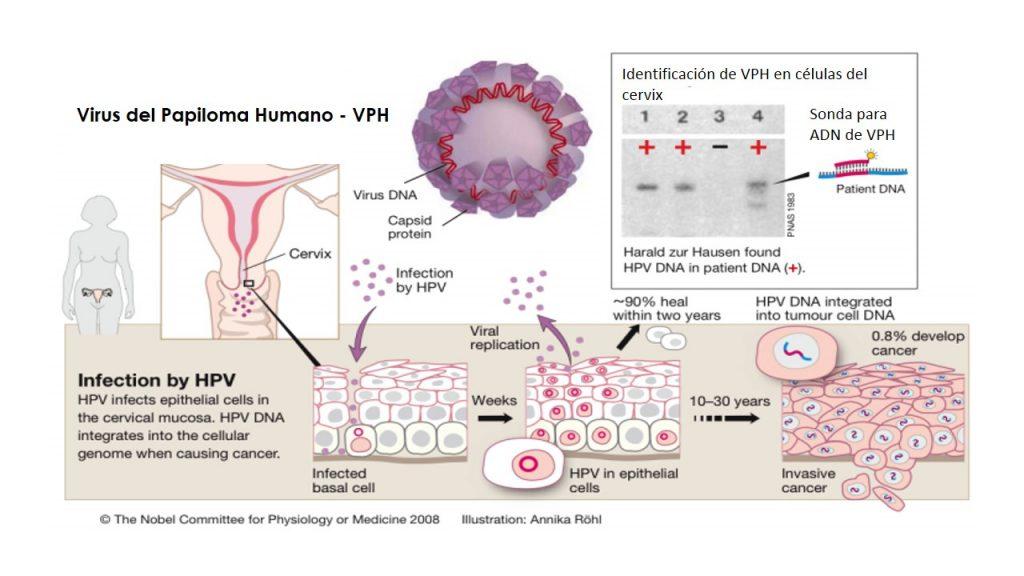 virus del papiloma humano factores de riesgo papillomavirus humain transmission
