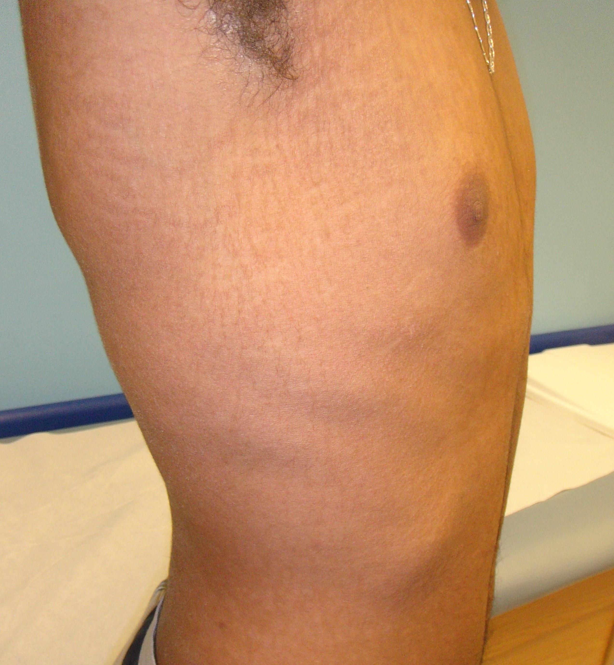 Nightshade pentru psoriazis - Primul pacient cu psoriazis