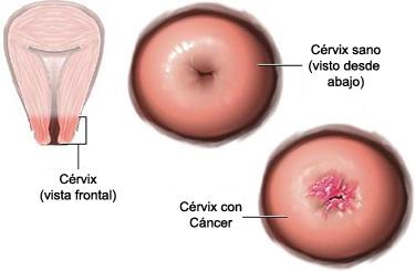 ovarian cancer chemotherapy regimen