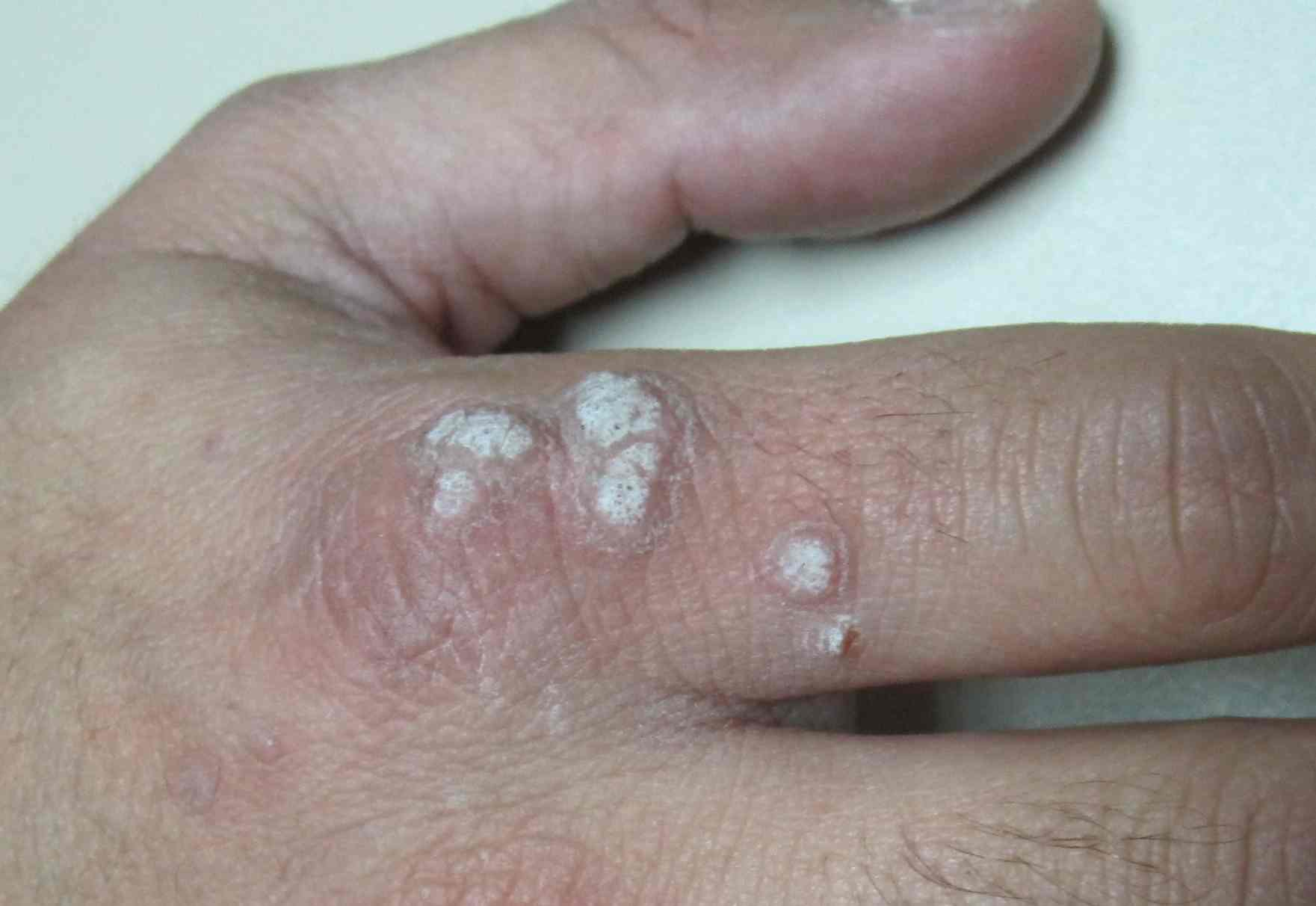 cancer tumor benign malignant