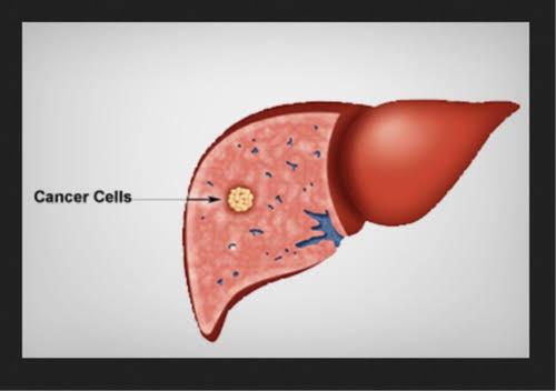 liver cancer - Traducere în română - exemple în engleză | Reverso Context