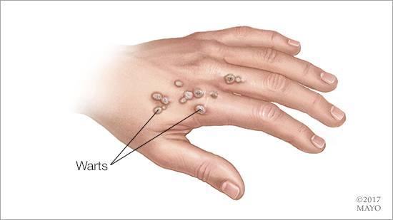 warts on hands won t go away