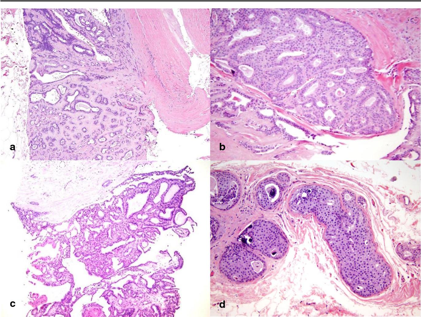 schneiderian papilloma fungiform type cancerul pulmonar la fumatori