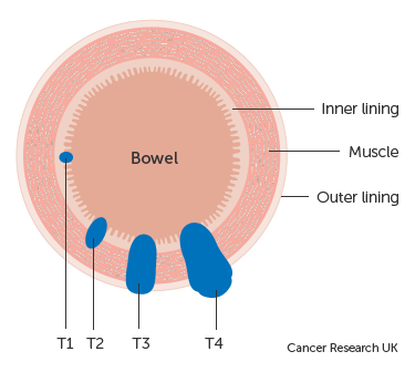 cancer rectal stages