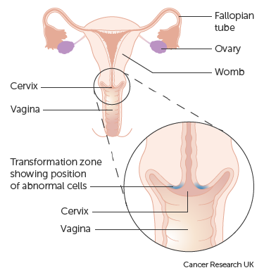 hpv precancerous cells cervix treatment
