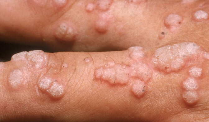 virus del papiloma humano sintomi