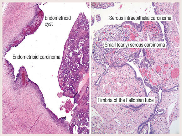 ovarian cancer epithelial tumors hpv vaccino uomo adulto
