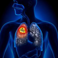 cancer malign plamani