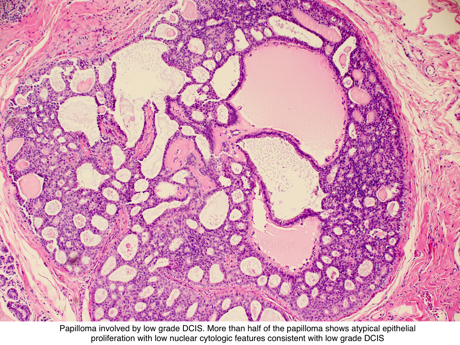papilloma with dcis