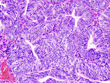 [Hormone receptors and markers in endometrial hyperplasia. Immunohistochemical study].