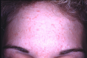 hpv and skin conditions