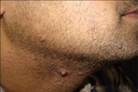 penyebab papiloma di leher