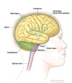 cancer cerebral etapa final el virus de papiloma humano que es