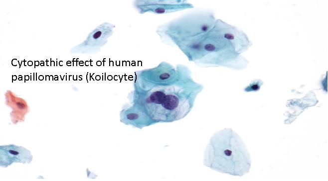 wart virus cytopathic changes