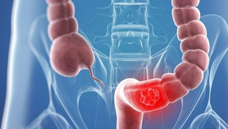 cancerul de colon cauze si simptome