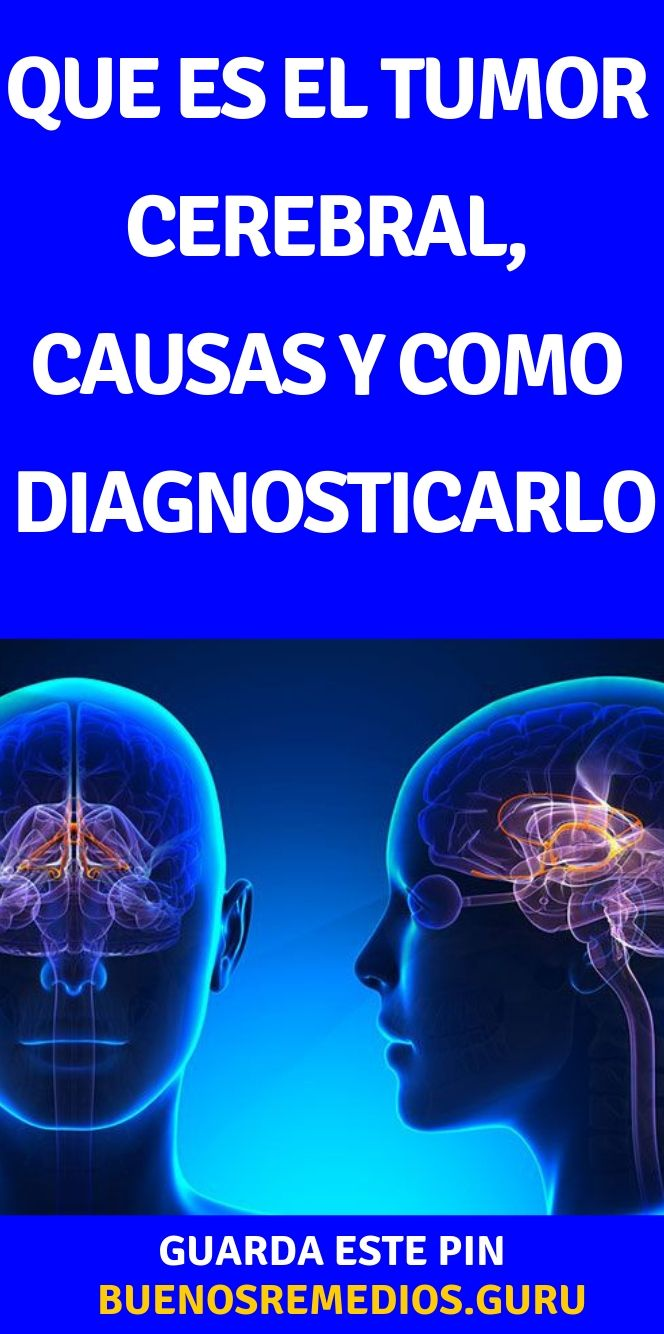 cancer cerebral q es