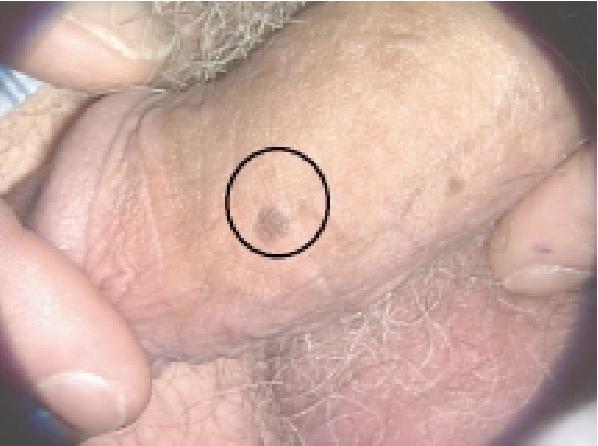 infection papillomavirus lesion hpv cancer genetics