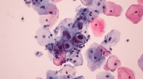 papilloma virus definition