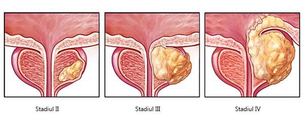 cancerul de uretra