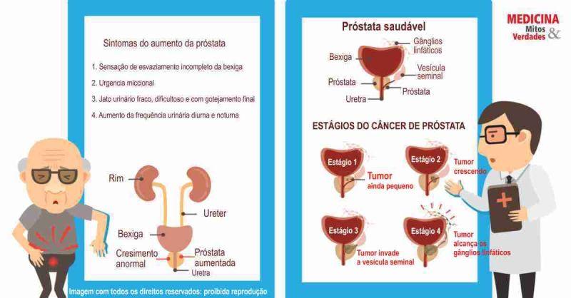 adenocarcinoma prostata tratamento