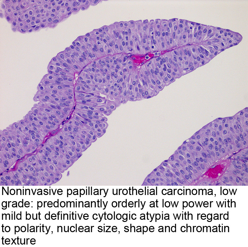 papillary urothelial carcinoma immunohistochemistry