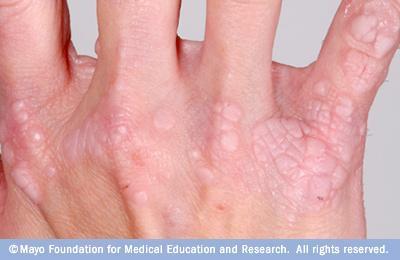 hpv broken skin schistosomiasis granuloma formation