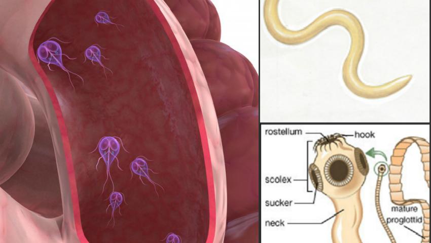 komplikasi enterobiasis