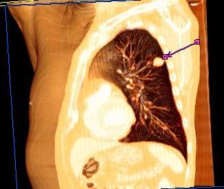 hpv warts and penile cancer sinonasal inverted papilloma
