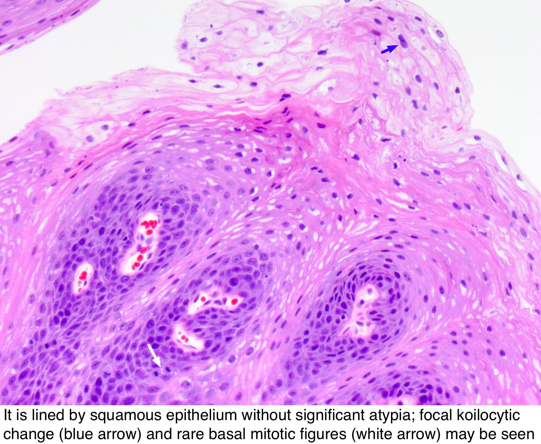 pathology of papillomatosis