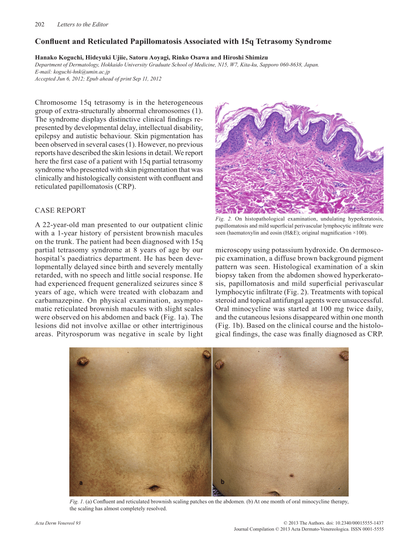 confluent and reticulated papillomatosis reddit