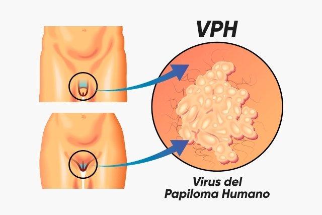 imagenes virus del papiloma humano verrugas genitales