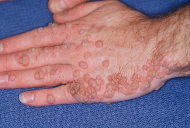 rimedi contro papilloma virus vestibular papillomatosis suddenly