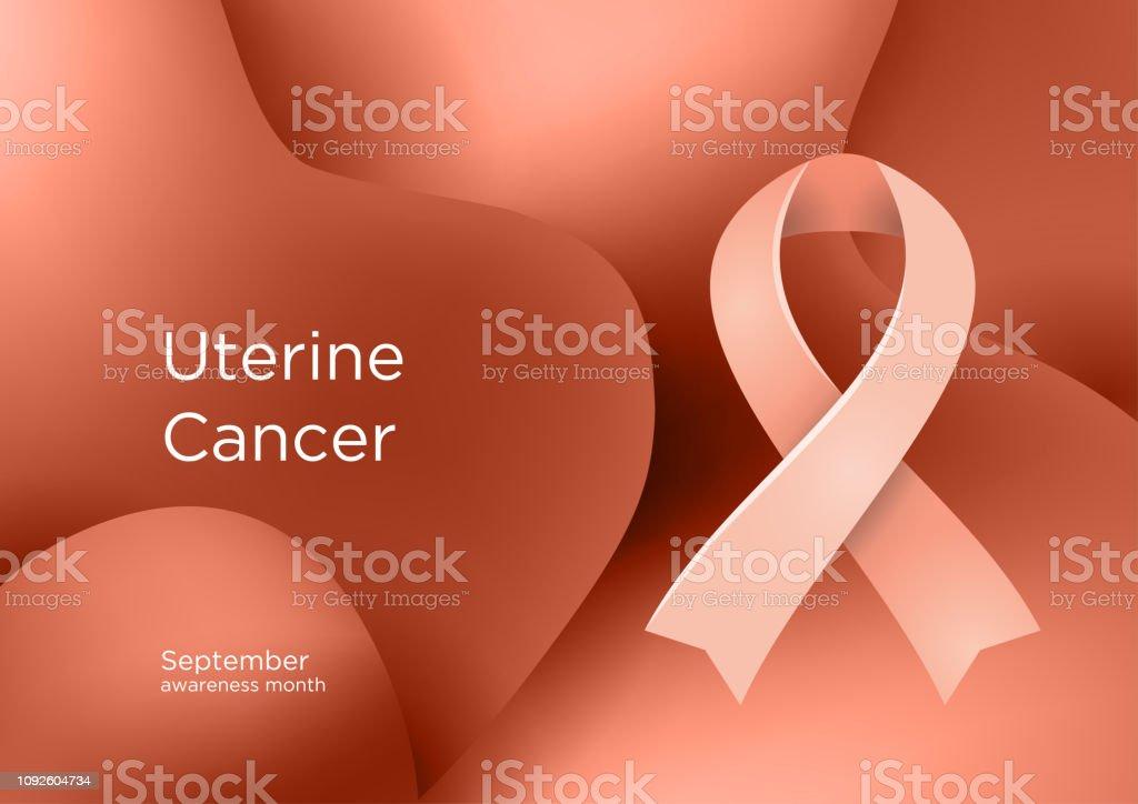 endometrial cancer color cancerul de piele se poate vindeca