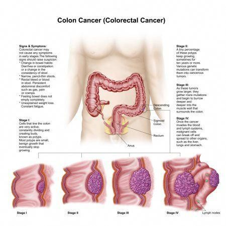 Cancer Colon Stage 4 Detoxifiere Alimente