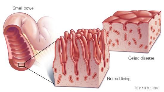 intestinal cancer celiac disease papillomavirus humain gorge