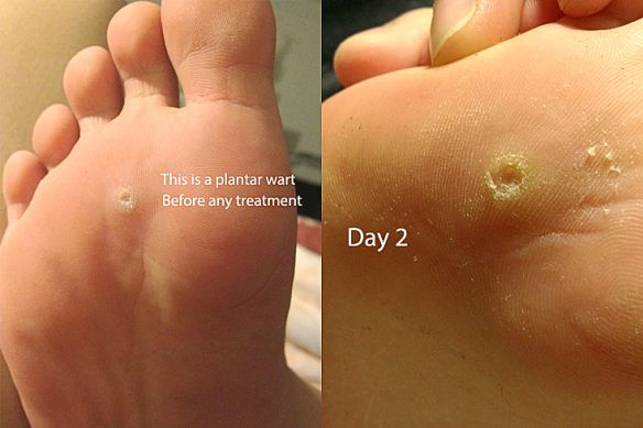 foot wart how to tell