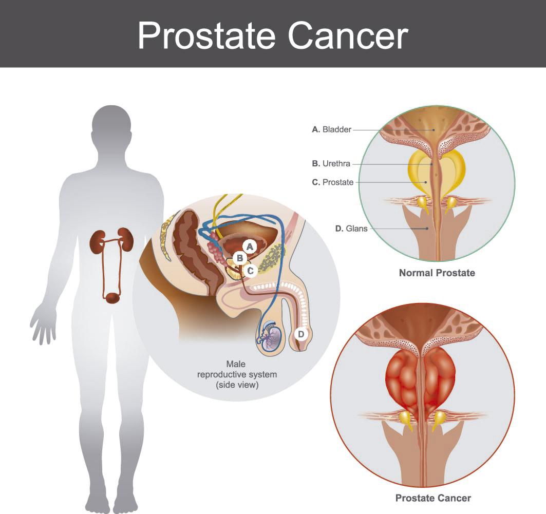 Cancer la prostata metastaza cu raspandire la coloana